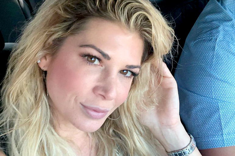 Alexis Bellino Black Eye Accident
