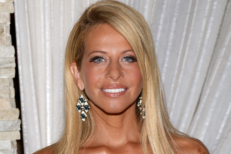 Dina Manzo Nose Job Surgery