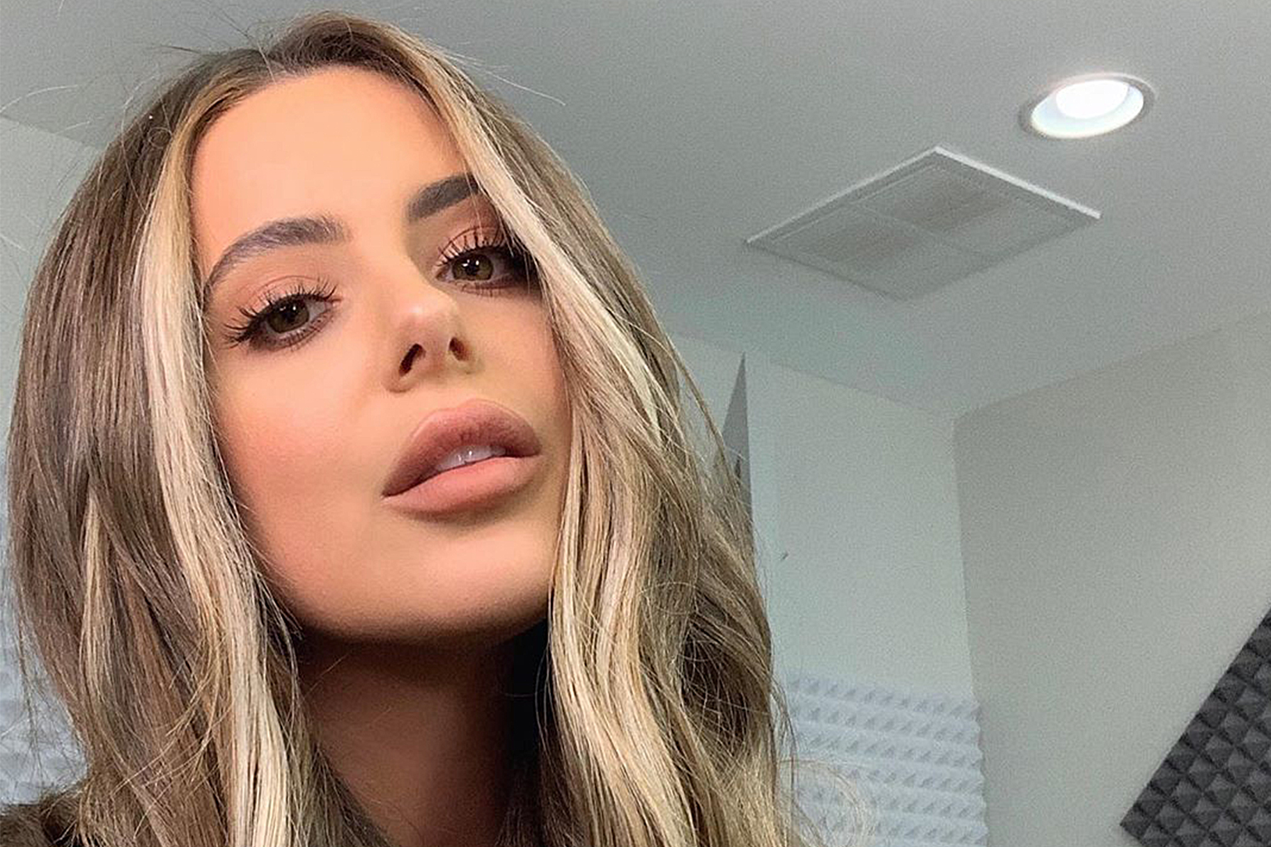 Brielle Biermann New Lip Fillers