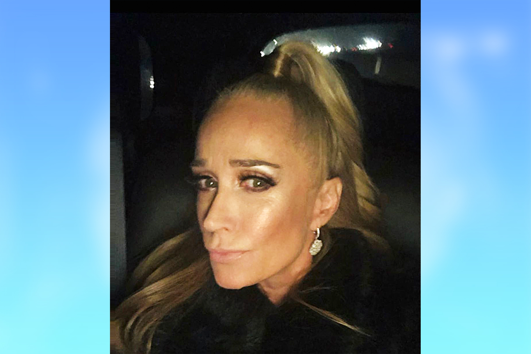 Kim Richards New Teeth