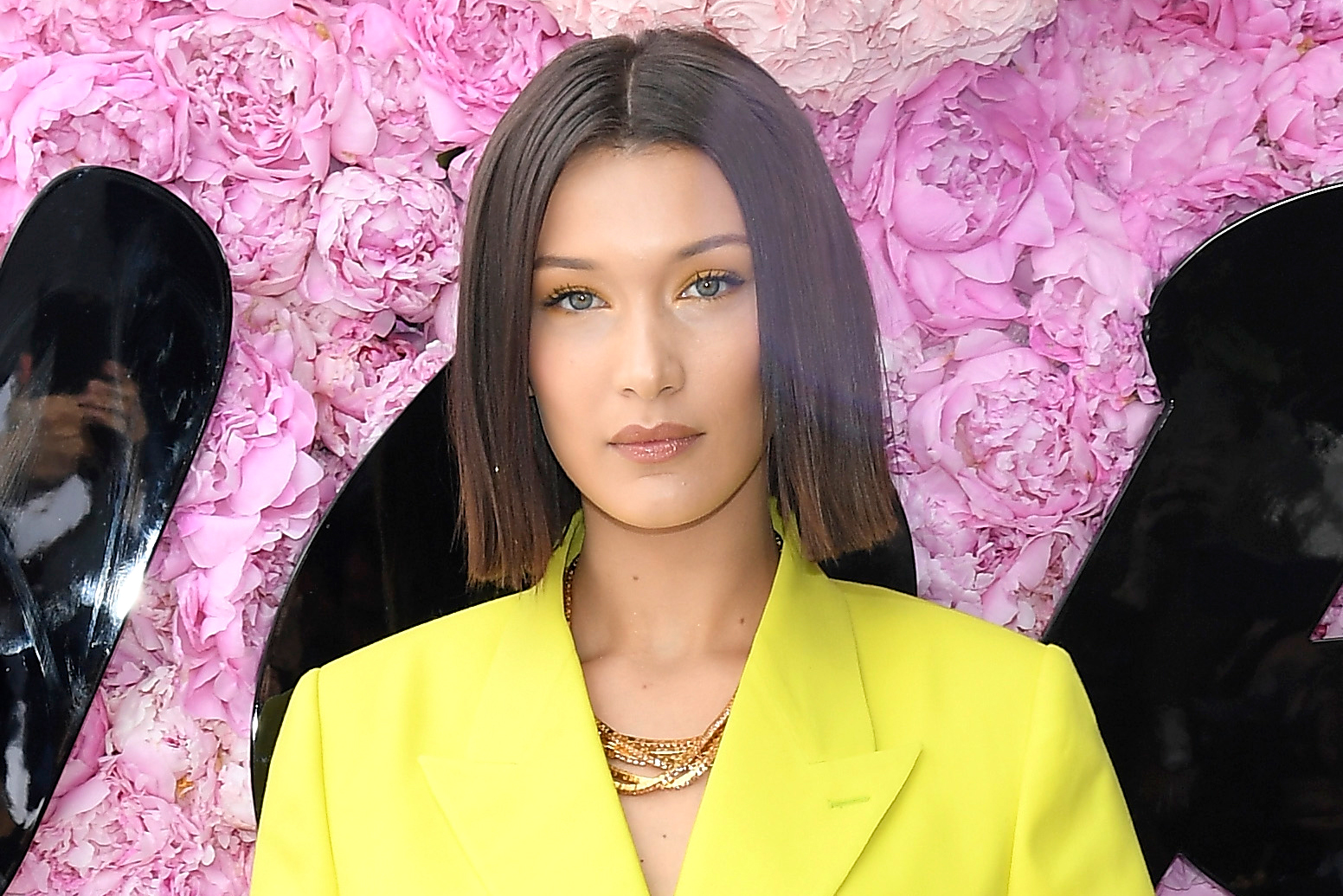 Bella Hadid Lyme Disease Update