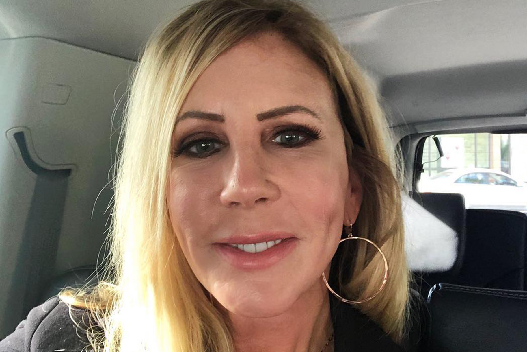 Vicki Gunvalson Allergic Reaction