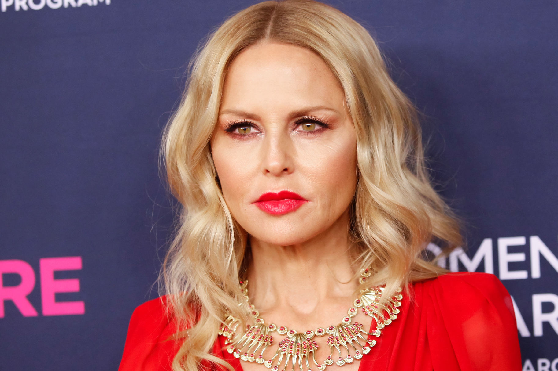 Rachel Zoe Son Ski Accident
