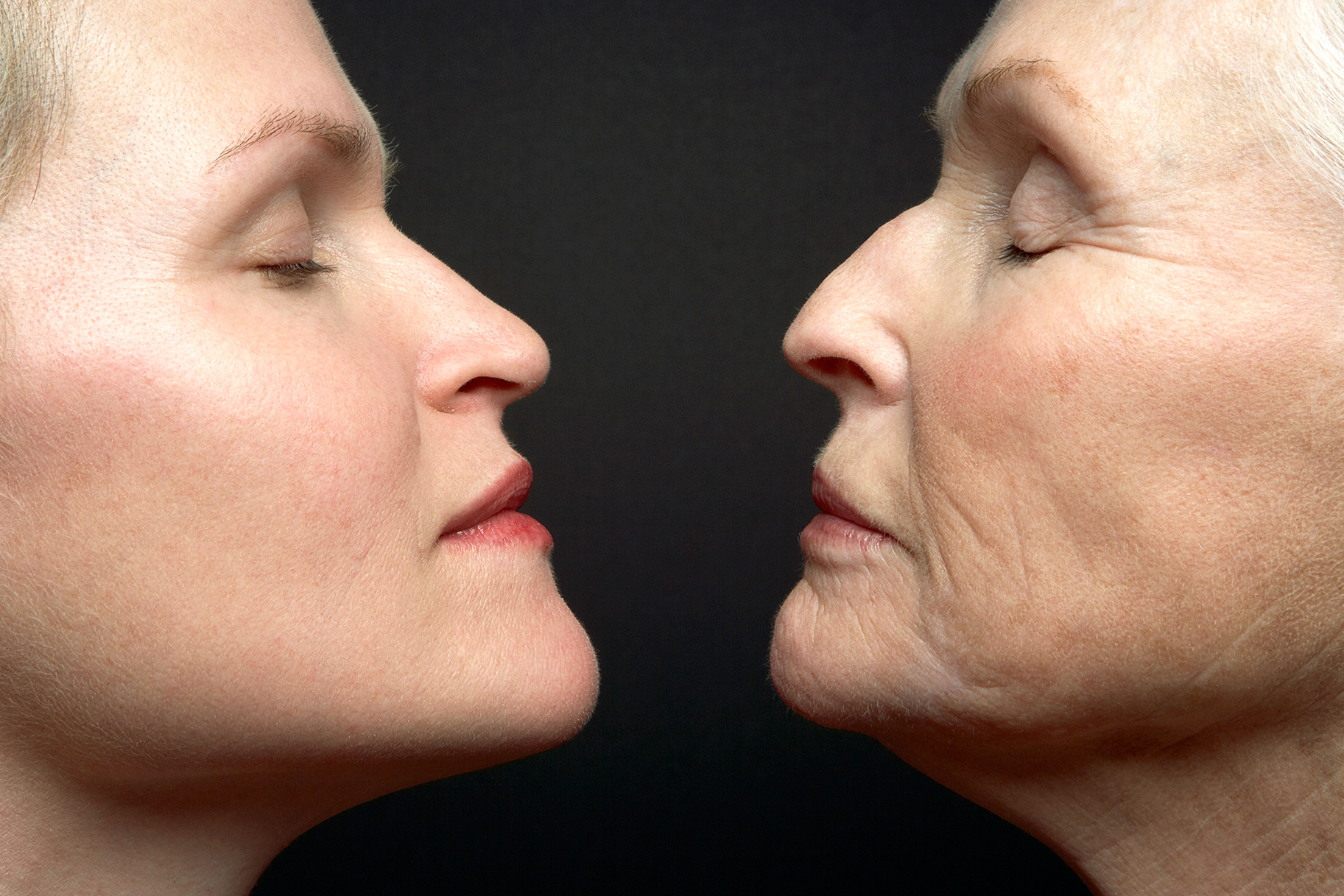 Anti-Aging Plastic Surgery Trends Radiofrequency Style & Liv