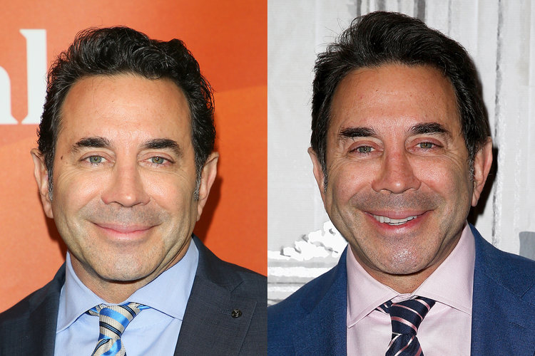 Paul Nassif Facelift