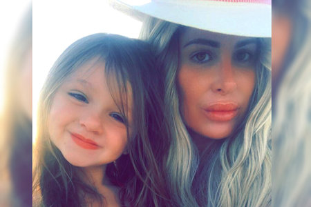 Kaia Kim Zolciak Biermann Broken Arm