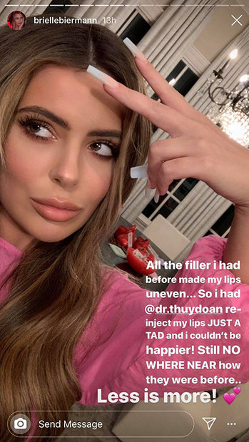 Brielle Biermann Lip Fillers 2 1