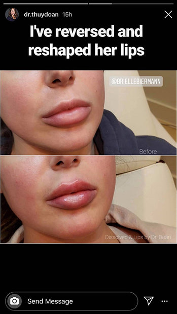 Brielle Biermann Lip Fillers 3