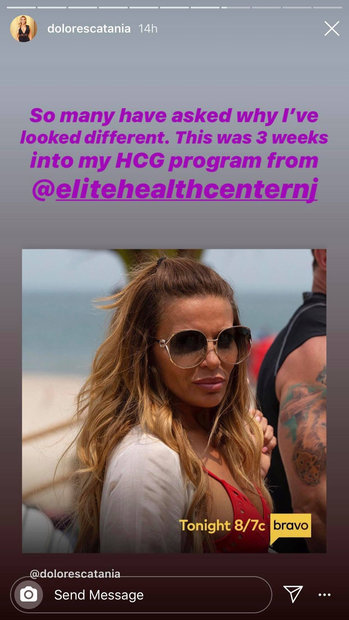 Dolores Catania Rhonj Hcg Program 01