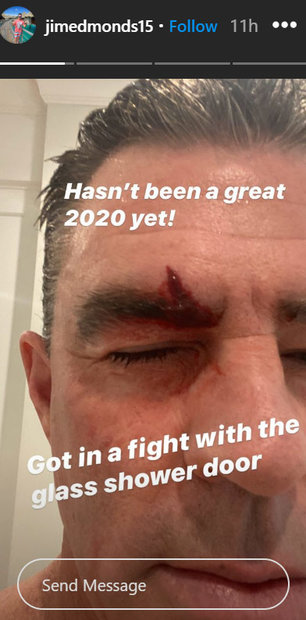 Jim Edmonds Injury Stitches Rhoc 01