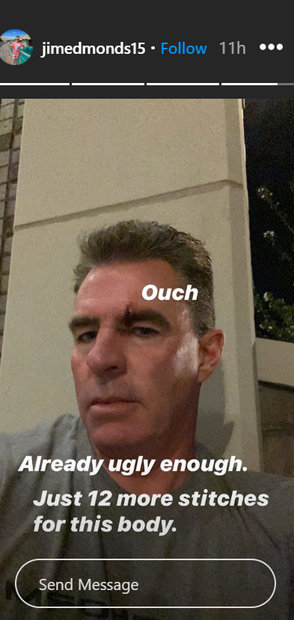 Jim Edmonds Injury Stitches Rhoc 02